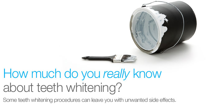 How much do you really know about teeth whitening?