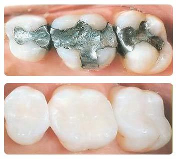 Teeth with Fillings
