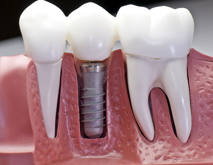 Image of Artificial tooth